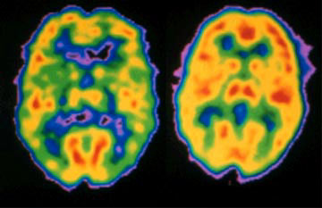 ... of schizophrenia sufferer's brain (left) and normal brain (right